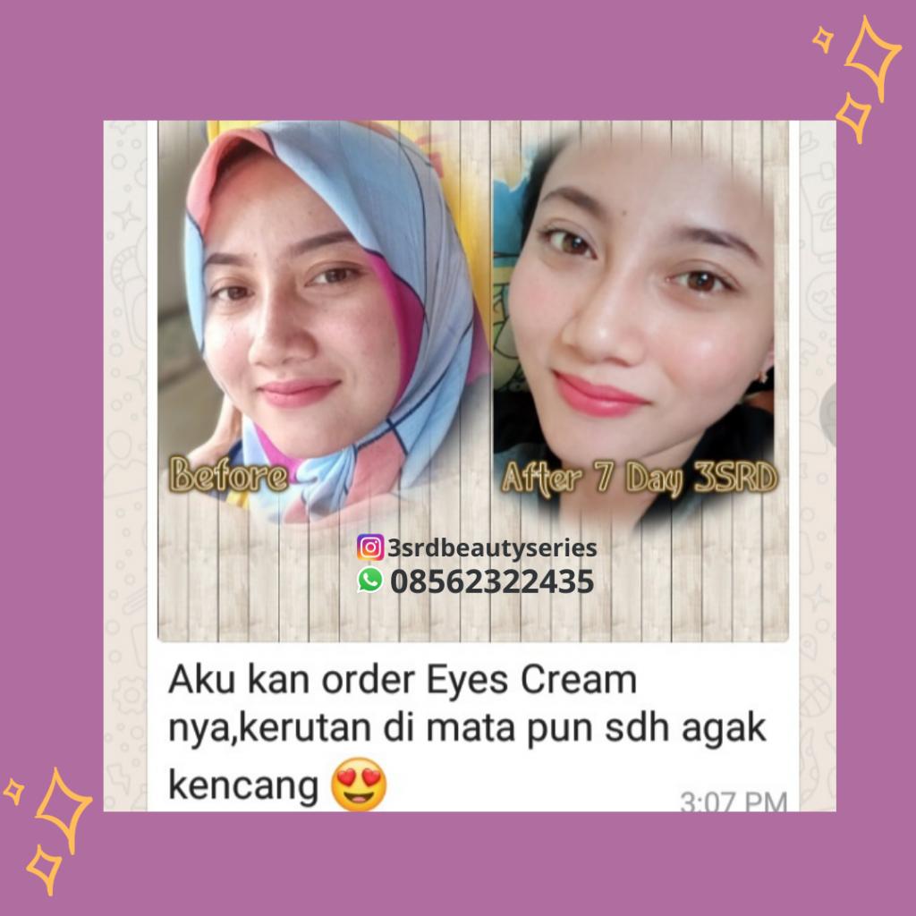 Testimoni eyes cream essential